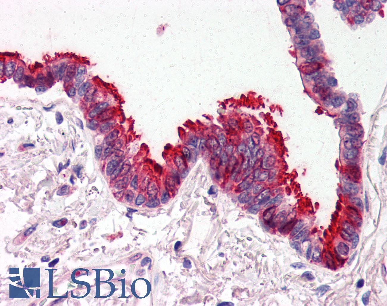 SKIL / SNO / SnoN Antibody - Anti-SKIL antibody IHC of human lung, respiratory epithelium. Immunohistochemistry of formalin-fixed, paraffin-embedded tissue after heat-induced antigen retrieval. Antibody concentration 5 ug/ml.