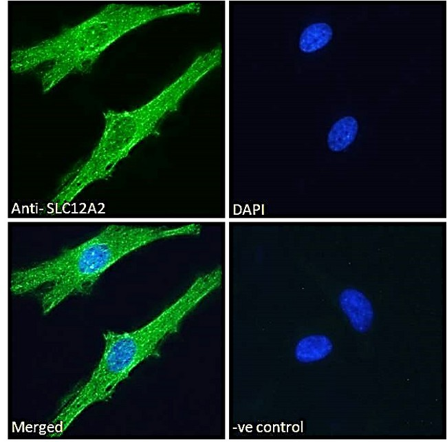 SLC12A2 / NKCC1 Antibody - Goat Anti-SLC12A2 Antibody Immunofluorescence analysis of paraformaldehyde fixed HeLa cells, permeabilized with 0.15% Triton. Primary incubation 1hr (10ug/ml) followed by Alexa Fluor 488 secondary antibody (2ug/ml), showing cytoplasmic/vesicle and membrane staining. The nuclear stain is DAPI (blue). Negative control: Unimmunized goat IgG (10ug/ml) followed by Alexa Fluor 488 secondary antibody (2ug/ml).