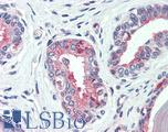 Anti-SLC12A2 / NKCC1 antibody IHC of human prostate. human. Immunohistochemistry of formalin-fixed, paraffin-embedded tissue after heat-induced antigen retrieval.