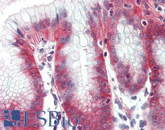 SLC12A2 / NKCC1 Antibody - Human, Stomach: Formalin-Fixed Paraffin-Embedded (FFPE)