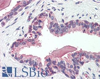 SLC12A2 / NKCC1 Antibody - Human, Prostate: Formalin-Fixed Paraffin-Embedded (FFPE)