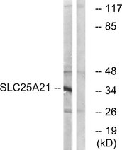 Western blot analysis of lysates from HepG2 cells, using SLC25A21 Antibody. The lane on the right is blocked with the synthesized peptide.