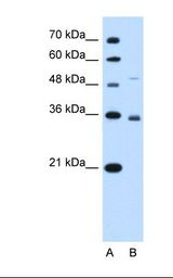 SLC38A3 / SNAT3 Antibody - Lane A: Marker. Lane B: HepG2 cell lysate. Anti-SLC38A3 Antibody concentration: 1.0 ug/ml. Gel concentration: 12%.  This image was taken for the unconjugated form of this product. Other forms have not been tested.