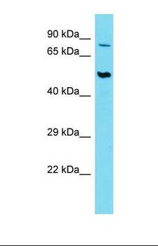 SLC44A2 / CTL2 Antibody - Western blot of Human Thymus Tumor. SLC44A2 antibody dilution 1.0 ug/ml.  This image was taken for the unconjugated form of this product. Other forms have not been tested.