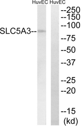 Western blot analysis of lysates from HUVEC cells, using SLC5A3 Antibody. The lane on the right is blocked with the synthesized peptide.