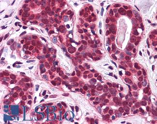 Anti-SLC5A6 antibody IHC of human breast. Immunohistochemistry of formalin-fixed, paraffin-embedded tissue after heat-induced antigen retrieval.