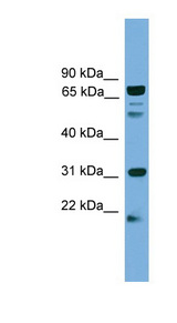 SLC6A3 / Dopamine Transporter antibody western blot of HepG2 cell lysate.  This image was taken for the unconjugated form of this product. Other forms have not been tested.