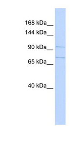 SLC8A3 / NCX3 Antibody - SLC8A3 antibody Western blot of 721_B cell lysate. This image was taken for the unconjugated form of this product. Other forms have not been tested.