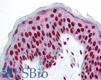 Anti-SMAD3 antibody IHC of human skin. Immunohistochemistry of formalin-fixed, paraffin-embedded tissue after heat-induced antigen retrieval. Antibody concentration 5 ug/ml.