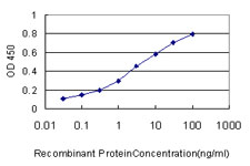 SMARCB1 / INI1 Antibody - Detection limit for recombinant GST tagged SMARCB1 is approximately 0.03 ng/ml as a capture antibody.