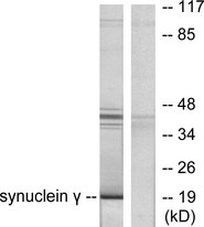 Western blot analysis of lysates from HT29 cells, using Synuclein gamma Antibody. The lane on the right is blocked with the synthesized peptide.