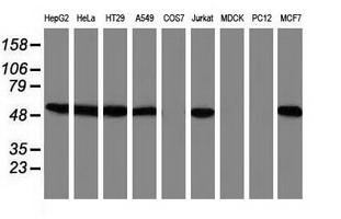 SNX8 Antibody - Western blot of extracts (35 ug) from 9 different cell lines by using anti-SNX8 monoclonal antibody.