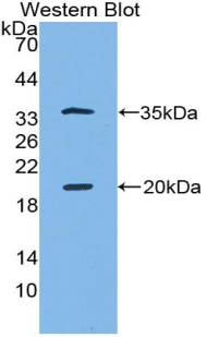 SPINK5 / LEKTI Antibody - Western blot of recombinant SPINK5 / LEKTI.  This image was taken for the unconjugated form of this product. Other forms have not been tested.