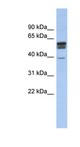 SPNS2 antibody Western blot of Fetal Muscle lysate. This image was taken for the unconjugated form of this product. Other forms have not been tested.