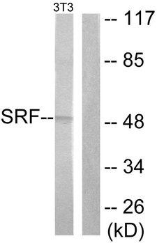 SRF / Serum Response Factor Antibody - Western blot analysis of lysates from NIH/3T3 cells, treated with PMA 125ng/ml 30', using SRF Antibody. The lane on the right is blocked with the synthesized peptide.