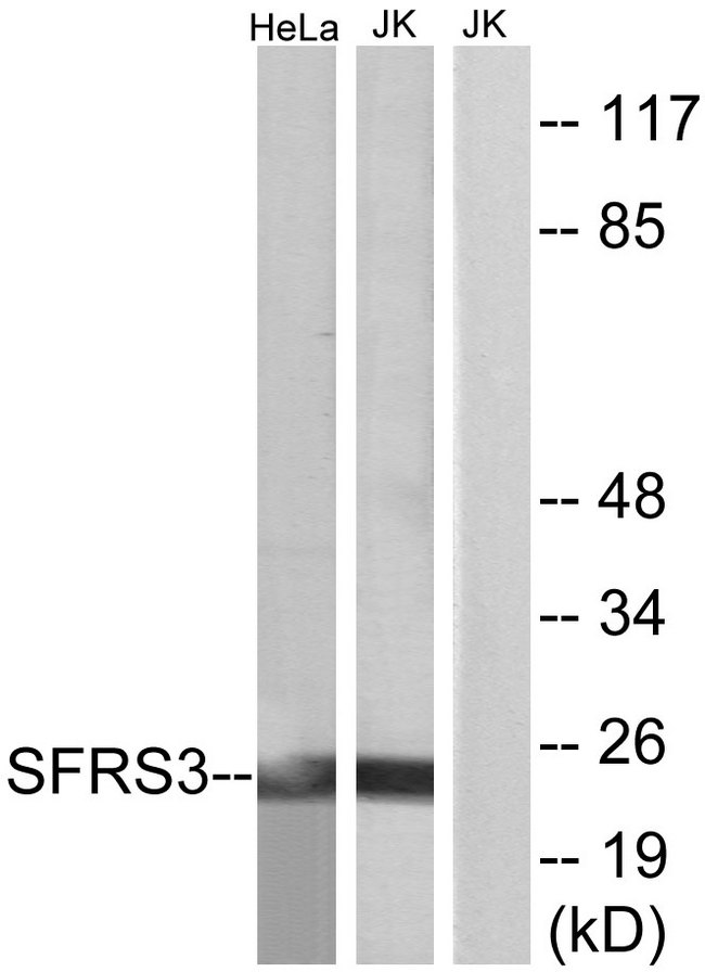 SRSF3 / SRP20 Antibody - Western blot analysis of lysates from HeLa and Jurkat cells, using SFRS3 Antibody. The lane on the right is blocked with the synthesized peptide.