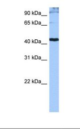SRSF6 / SRP55 Antibody - Jurkat cell lysate. Antibody concentration: 0.5 ug/ml. Gel concentration: 12%.  This image was taken for the unconjugated form of this product. Other forms have not been tested.
