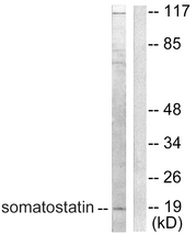 Western blot analysis of lysates from A549 cells, using Somatostatin Antibody. The lane on the right is blocked with the synthesized peptide.