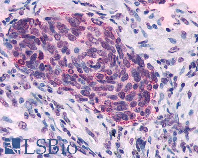 Anti-SSTR5 antibody IHC of human Lung, Small Cell Carcinoma. Immunohistochemistry of formalin-fixed, paraffin-embedded tissue after heat-induced antigen retrieval.