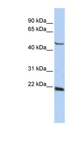 SSX4 antibody Western blot of HepG2 cell lysate. This image was taken for the unconjugated form of this product. Other forms have not been tested.