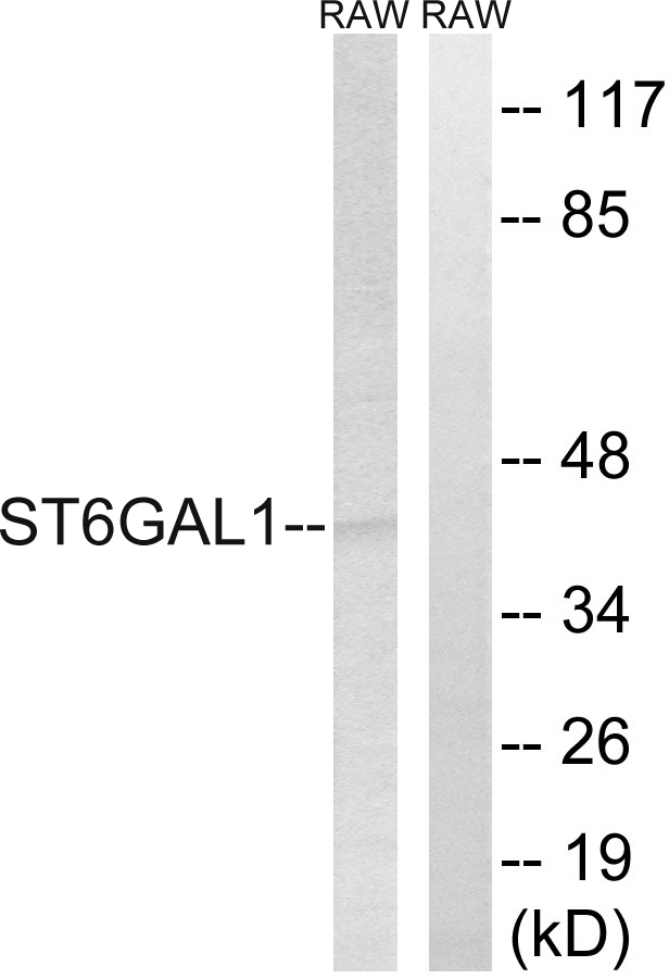 ST6GAL1 / CD75 Antibody - Western blot analysis of lysates from RAW264.7 cells, using ST6GAL1 Antibody. The lane on the right is blocked with the synthesized peptide.
