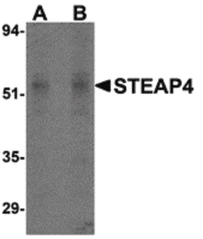 STEAP4 Antibody - Western blot of STEAP4 in rat liver tissue lysate with STEAP4 antibody at (A) 0.5 and (B) 1 ug/ml.