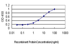 STK17B / DRAK2 Antibody - Detection limit for recombinant GST tagged STK17B is approximately 0.3 ng/ml as a capture antibody.