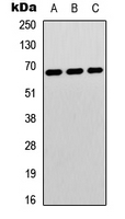 Western blot analysis of p67 expression in Jurkat (A); HeLa (B); human brain (C) whole cell lysates.