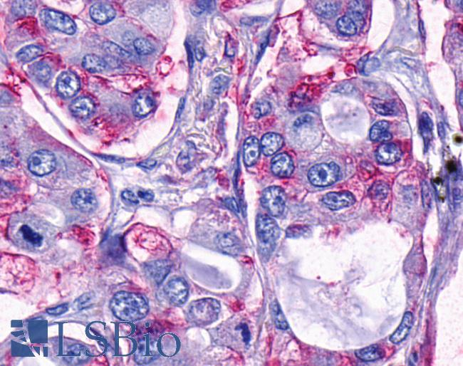TAAR9 Antibody - Anti-TAAR9 antibody IHC of human Lung, Adenocarcinoma. Immunohistochemistry of formalin-fixed, paraffin-embedded tissue after heat-induced antigen retrieval.