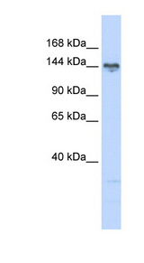 TBC1 / TBC1D1 Antibody - TBC1D1 antibody Western blot of 721_B cell lysate. This image was taken for the unconjugated form of this product. Other forms have not been tested.