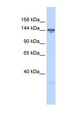 TBC1D1 antibody Western blot of 721_B cell lysate. This image was taken for the unconjugated form of this product. Other forms have not been tested.