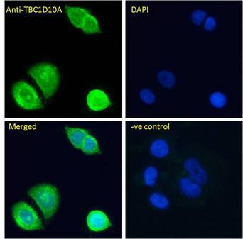 TBC1D10A Antibody - TBC1D10A antibody immunofluorescence analysis of paraformaldehyde fixed MCF7 cells, permeabilized with 0.15% Triton. Primary incubation 1hr (10ug/ml) followed by Alexa Fluor 488 secondary antibody (4ug/ml), showing cytoplasmic/Plasma Membrane and nuclear staining.
