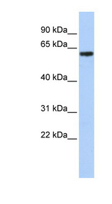TBX18 Antibody - TBX18 antibody Western blot of Jurkat lysate. This image was taken for the unconjugated form of this product. Other forms have not been tested.