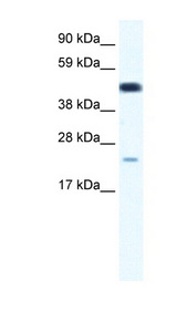 TCF7 Antibody - TCF7 antibody Western blot of Fetal thymus lysate. This image was taken for the unconjugated form of this product. Other forms have not been tested.