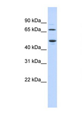 TDO2 antibody Western blot of Fetal Heart lysate. Antibody concentration 1 ug/ml. This image was taken for the unconjugated form of this product. Other forms have not been tested.