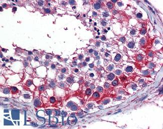 Anti-TES / Testin antibody IHC of human testis. Immunohistochemistry of formalin-fixed, paraffin-embedded tissue after heat-induced antigen retrieval. Antibody concentration 3 ug/ml.