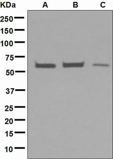 Testilin / EHD1 Antibody - Western blot analysis on (A) HepG2, (B) HeLa, and (C) JAR cell lysates using anti-EHD1 antibody.