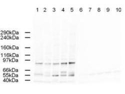 TFAP2A / AP-2 Antibody - Anti-AP2A Antibody - Western Blot. Western blot of Affinity Purified anti-AP2A antibody shows detection of a band just below 100 kD corresponding to Human AP2A1 in a various preparations. Lane 1 - HeLa nuclear extract, Lane 2 - HeLa, Lane 3 - 293, Lane 4 - A431 and Lane 5 - Jurkat whole cell lysates. In lanes 6-10 the antibody was preincubated with 1 ug/ml of the immunizing peptide which effectively blocks the specific reactivity of this antibody with AP2A. Approximately 20 ug of each lysate was run on a SDS-PAGE and transferred onto nitrocellulose followed by reaction with a 1:500 dilution of anti-AP2A antibody. Detection occurred using a 1:5000 dilution of HRP-labeled Rabbit anti-Goat IgG for 1 hour at room temperature. A chemiluminescence system was used for signal detection (Roche) using a 60-sec exposure time.