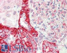 TFEB Antibody - Human Kidney: Formalin-Fixed, Paraffin-Embedded (FFPE)