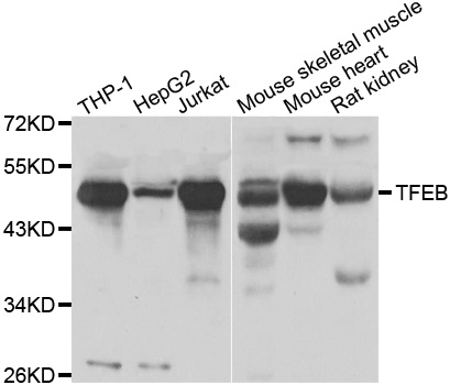 TFEB Antibody - Western blot analysis of extracts of various cell lines.