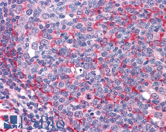 Anti-THRA antibody IHC of human tonsil. Immunohistochemistry of formalin-fixed, paraffin-embedded tissue after heat-induced antigen retrieval. Antibody concentration 3.75 ug/ml.