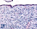 Anti-THRA antibody IHC of human surface epithelium. Immunohistochemistry of formalin-fixed, paraffin-embedded tissue after heat-induced antigen retrieval.
