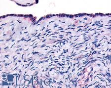 THRA / THR Alpha Antibody - Anti-THRA antibody IHC of human surface epithelium. Immunohistochemistry of formalin-fixed, paraffin-embedded tissue after heat-induced antigen retrieval.