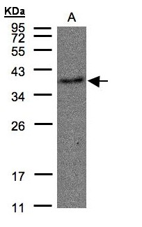Sample(30 g of whole cell lysate). A: Raji. 12% SDS PAGE. TBXA2R antibody diluted at 1:500.