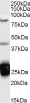 TIA-1 antibody (0.1µg/ml) staining of Jurkat cell lysate (35µg protein in RIPA buffer). Detected by chemiluminescence.