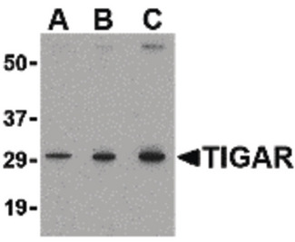Western blot of TIGAR in MCF7 cell lysate with TIGAR antibody at (A) 0.5, (B) 1 and (C) 2 ug/ml.