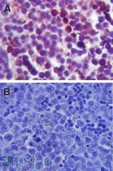 TLR4 Antibody - IHC analysis of TLR4 using TLR4 antibody, tested in formalin-fixed paraffin-embedded mouse spleen tissue.  This image was taken for the unconjugated form of this product. Other forms have not been tested.