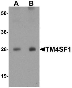 TM4SF1 Antibody - Western blot analysis of TM4SF1 in human lung tissue lysate with TM4SF1 antibody at (A) 0.5 and (B) 1 ug/ml.