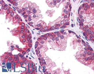 Anti-TMEM38B antibody IHC of human prostate. Immunohistochemistry of formalin-fixed, paraffin-embedded tissue after heat-induced antigen retrieval. Antibody concentration 5 ug/ml.