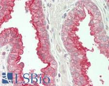 TMPRSS2 / Epitheliasin Antibody - Human Prostate: Formalin-Fixed, Paraffin-Embedded (FFPE)